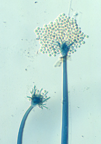 Microscopic image of Mortierella turficola