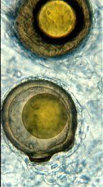 Pilaira anomala zygospores