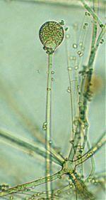 Absidia spinosa sporangium and sporangiophore
