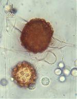 Zygospores of Cunninghamella echinulata