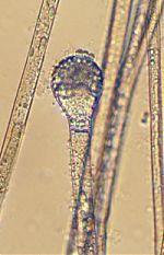 Sporangium of Chlamydoabsidia padenii