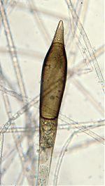 Chlamydospore of Chlamydoabsidia padenii