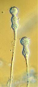 Halteromyces radiatus sporangia