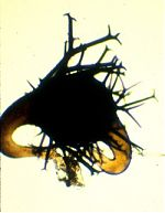 Zygospore of Phycomyces