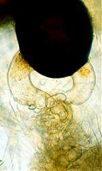 A zygospore of Poitrasia circinans